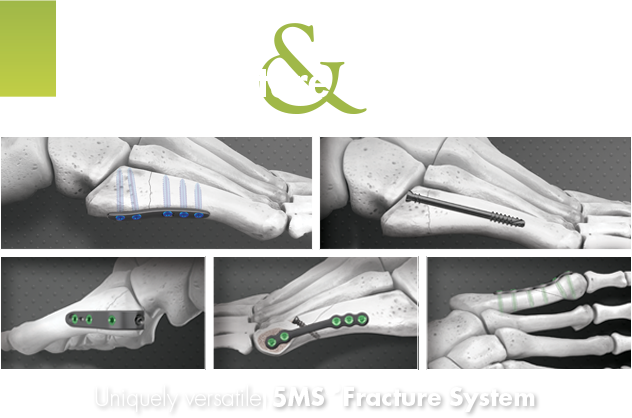 Lower Extremity 5th metatarsal fracture repair plates