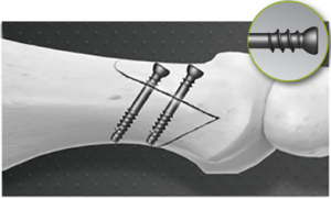 In2Bones compression screws for foot and ankle