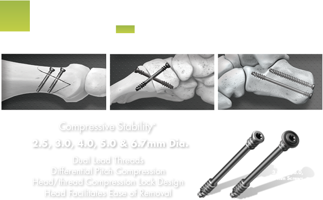 Lower Extremity compression screws