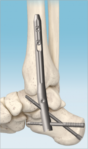 In2Bones ankle arthrodesis nail for foot and ankle