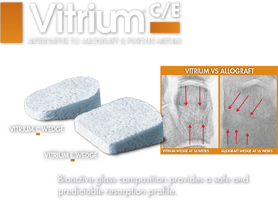 Lower Extremity allograft alternative bioactive glass c wedge and e wedge